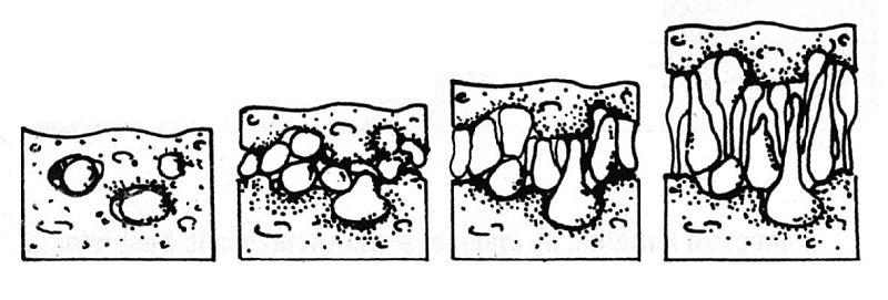 risalita capillare